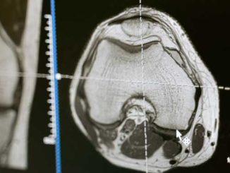 Stoßwellentherapie beim Knochenmarködem